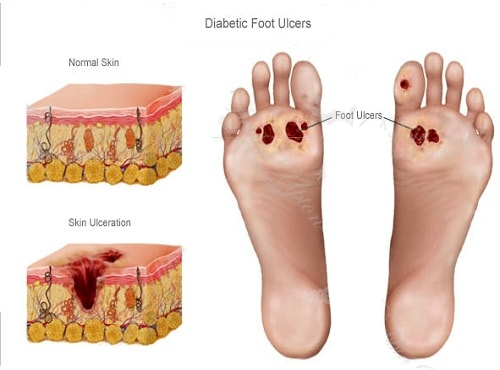 diabetes foot effected